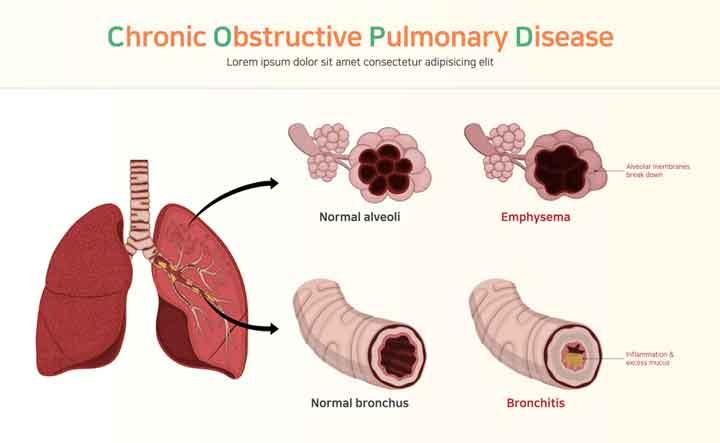 Be Careful About Chronic Bronchitis